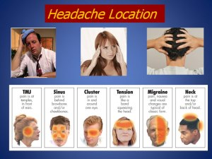Headache Locations